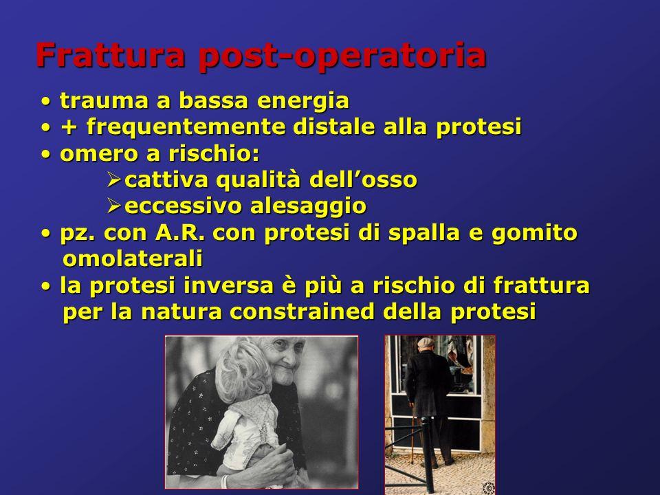 Frattura post-operatoria trauma a bassa energia trauma a bassa energia + frequentemente distale alla protesi + frequentemente distale alla protesi ome