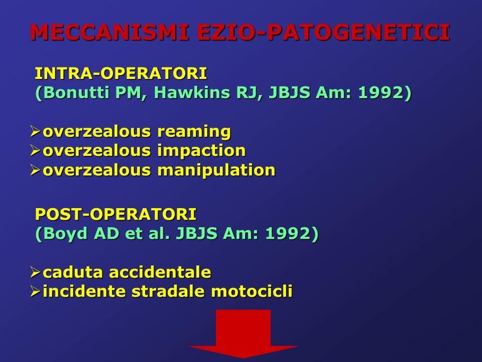 MECCANISMI EZIO-PATOGENETICI INTRA-OPERATORI INTRA-OPERATORI (Bonutti PM, Hawkins RJ, JBJS Am: 1992) (Bonutti PM, Hawkins RJ, JBJS Am: 1992) overzealo