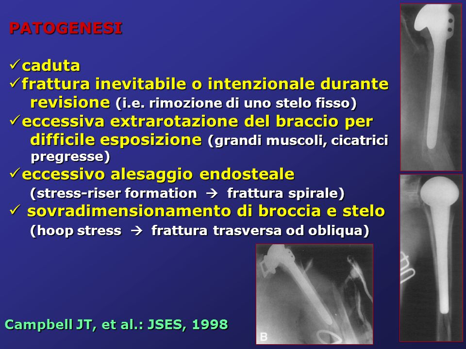 Worland RL: JSES, 1999 Classificazione