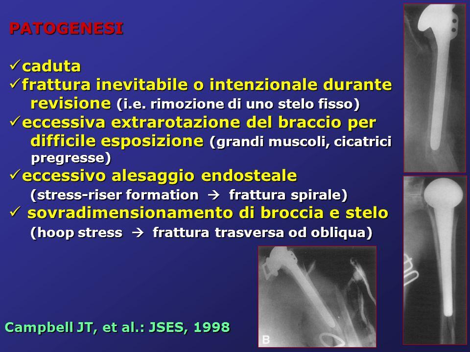 PATOGENESI caduta caduta frattura inevitabile o intenzionale durante revisione (i.e. rimozione di uno stelo fisso) frattura inevitabile o intenzionale