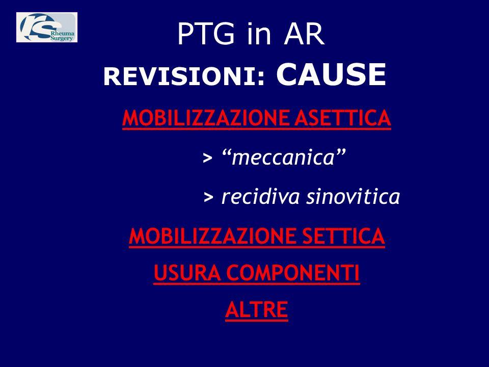 PTG in AR REVISIONI: CAUSE MOBILIZZAZIONE ASETTICA > meccanica > recidiva sinovitica MOBILIZZAZIONE SETTICA USURA COMPONENTI ALTRE