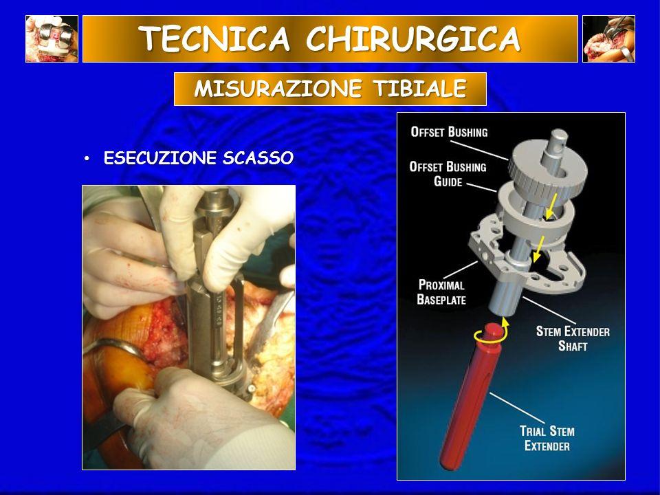ESECUZIONE SCASSO ESECUZIONE SCASSO TECNICA CHIRURGICA MISURAZIONE TIBIALE