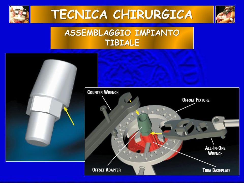 ASSEMBLAGGIO IMPIANTO TIBIALE TECNICA CHIRURGICA