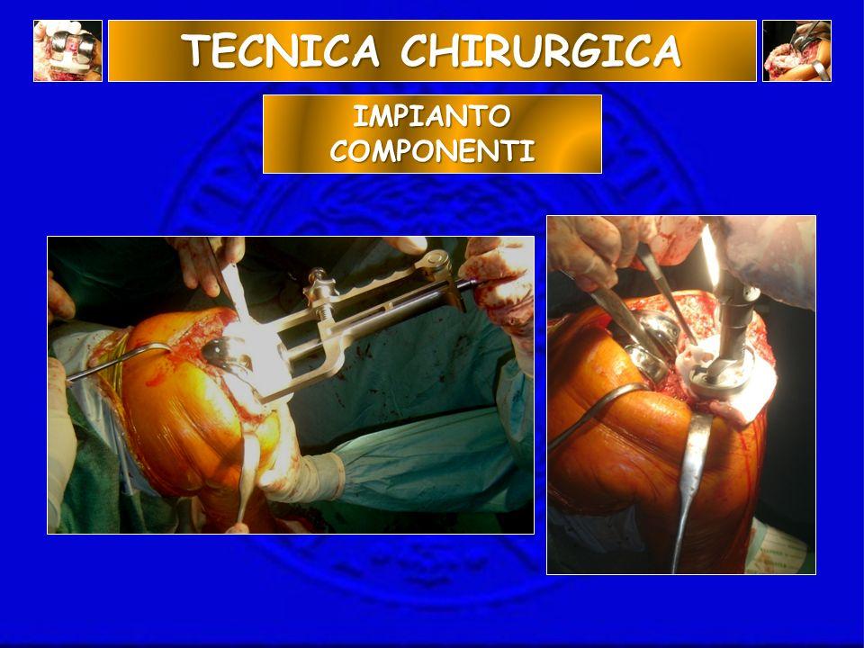 IMPIANTO COMPONENTI TECNICA CHIRURGICA