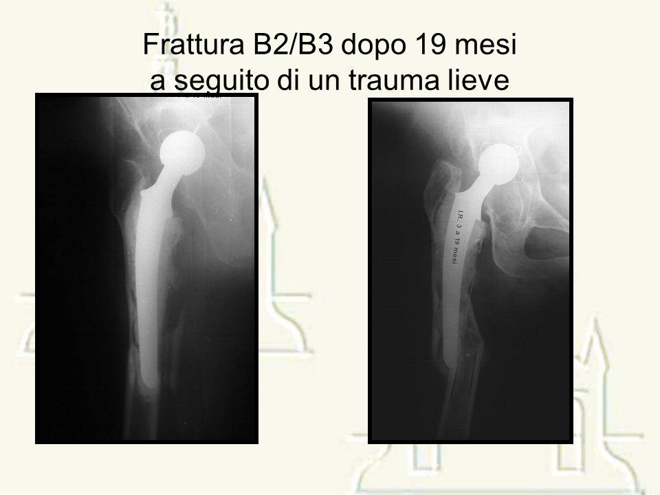 Frattura B2/B3 dopo 19 mesi a seguito di un trauma lieve