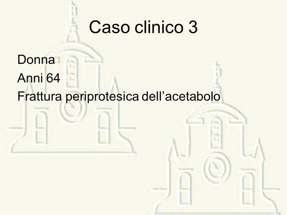 Caso clinico 3 Donna Anni 64 Frattura periprotesica dellacetabolo