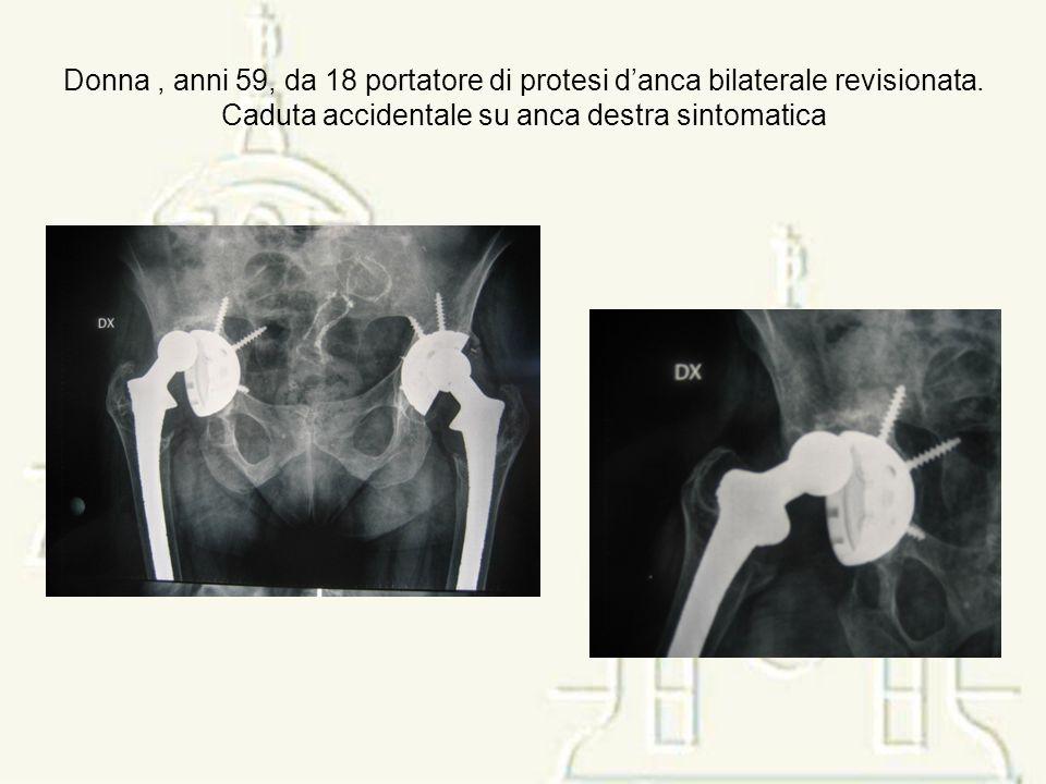 Donna, anni 59, da 18 portatore di protesi danca bilaterale revisionata. Caduta accidentale su anca destra sintomatica