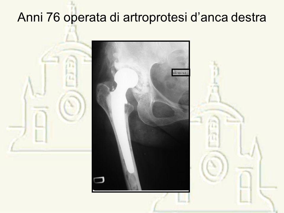 Anni 76 operata di artroprotesi danca destra
