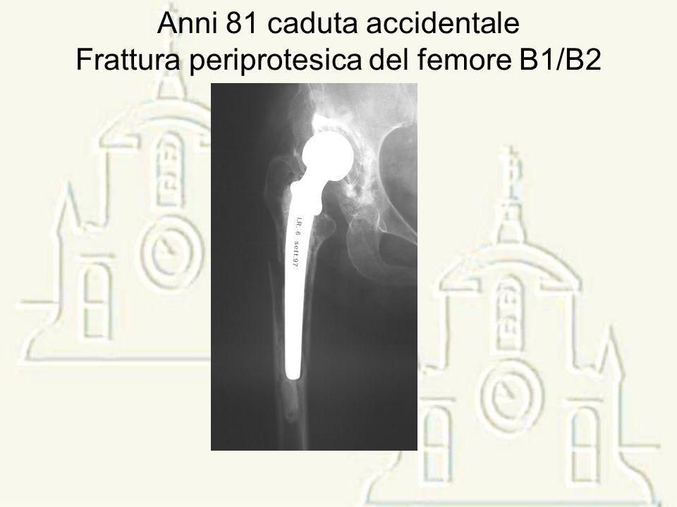 Nei casi di frattura periprotesica,oltre al tipo e alla sede della frattura è la stabilità delle componenti protesiche e la qualità dell osso che risulta discriminante nella scelta del tipo di terapia.