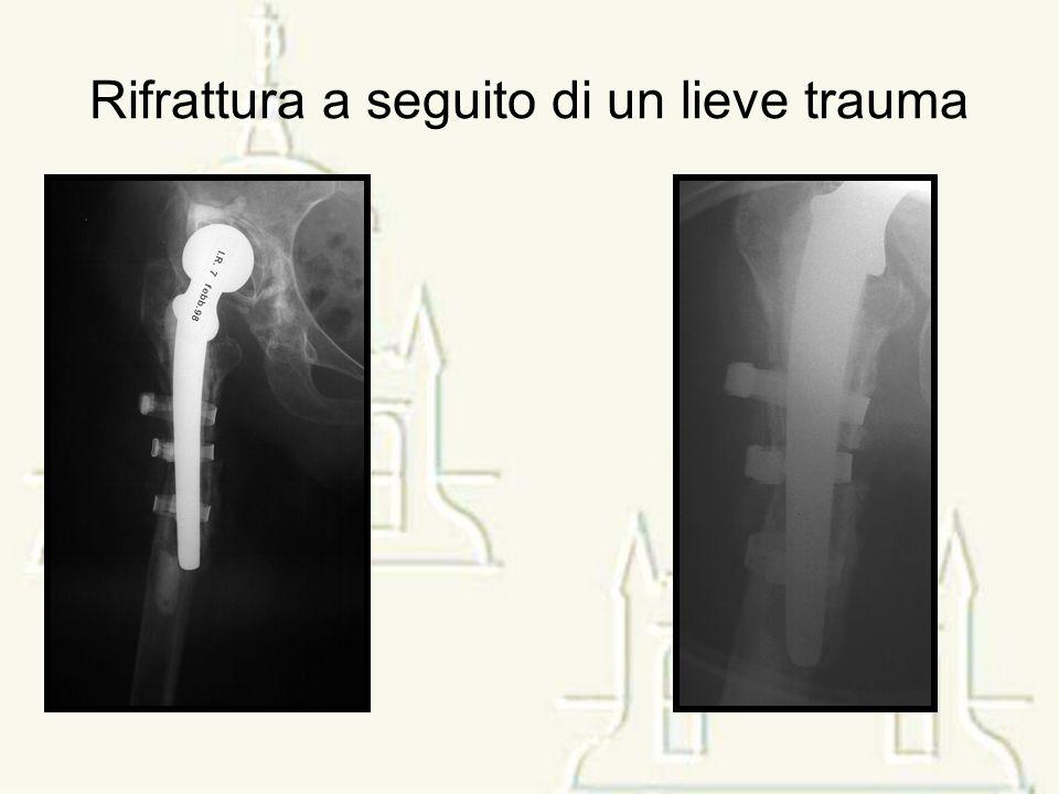 Asportazione sintesi e osso infetto + spaziatore