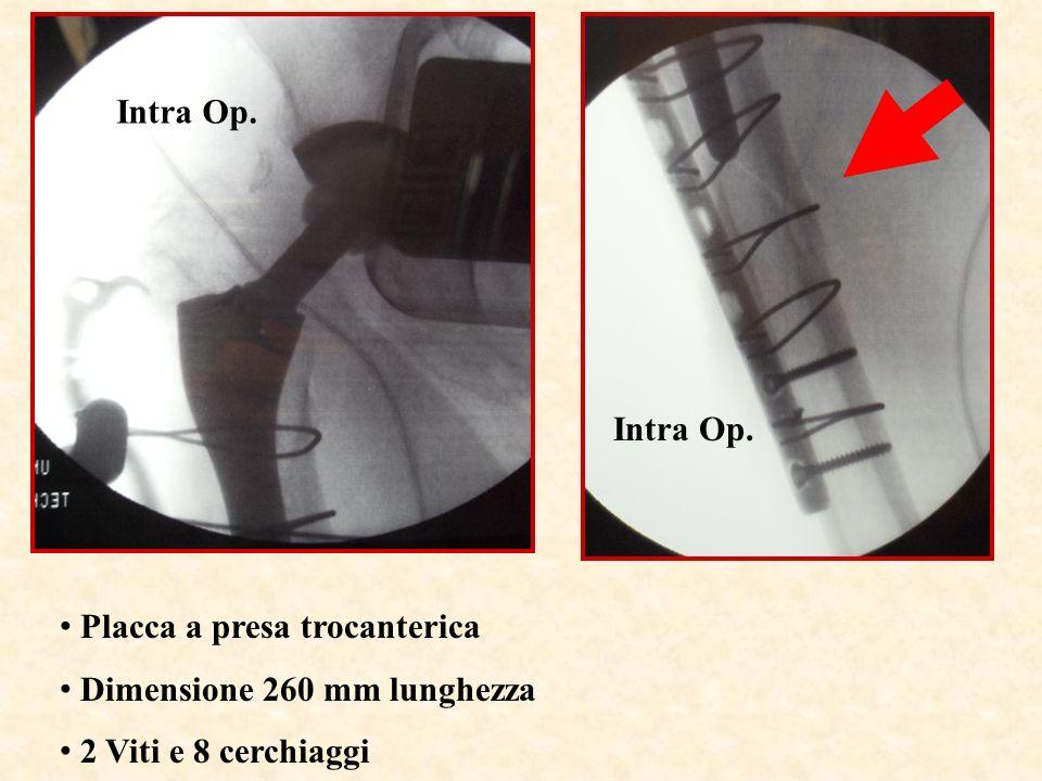 Intra Op. Placca a presa trocanterica Dimensione 260 mm lunghezza 2 Viti e 8 cerchiaggi Intra Op.