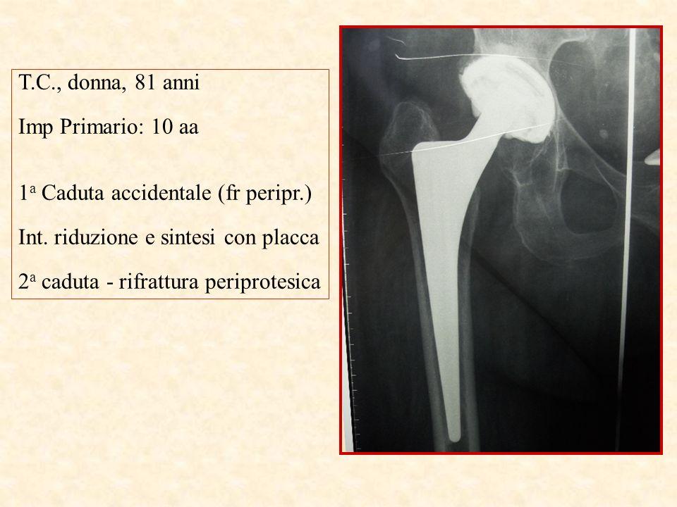 T.C., donna, 81 anni Imp Primario: 10 aa 1 a Caduta accidentale (fr peripr.) Int. riduzione e sintesi con placca 2 a caduta - rifrattura periprotesica