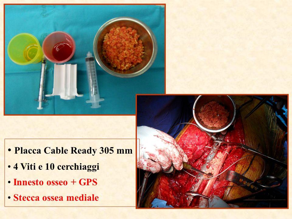 Placca Cable Ready 305 mm 4 Viti e 10 cerchiaggi Innesto osseo + GPS Stecca ossea mediale