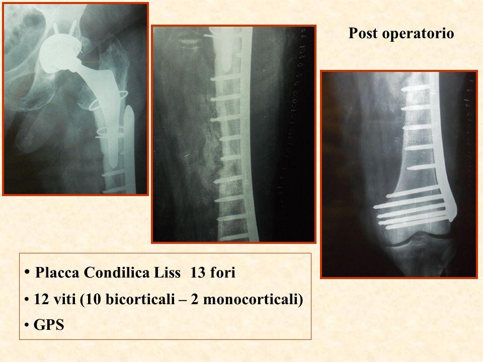 Post operatorio Placca Condilica Liss 13 fori 12 viti (10 bicorticali – 2 monocorticali) GPS