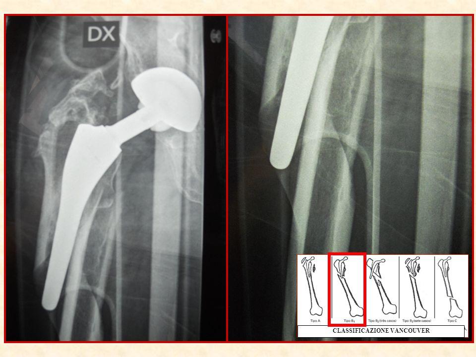 Periprosthetic fracture in femur THR Pre operative radiograph Stem Satble.
