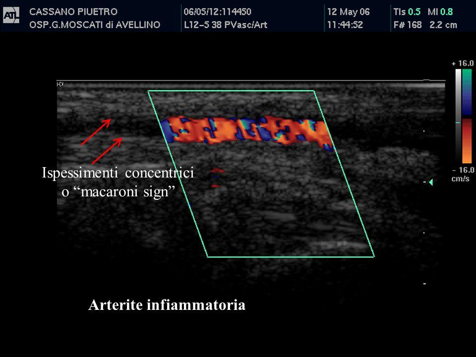 Arterite infiammatoria Ispessimenti concentrici o macaroni sign