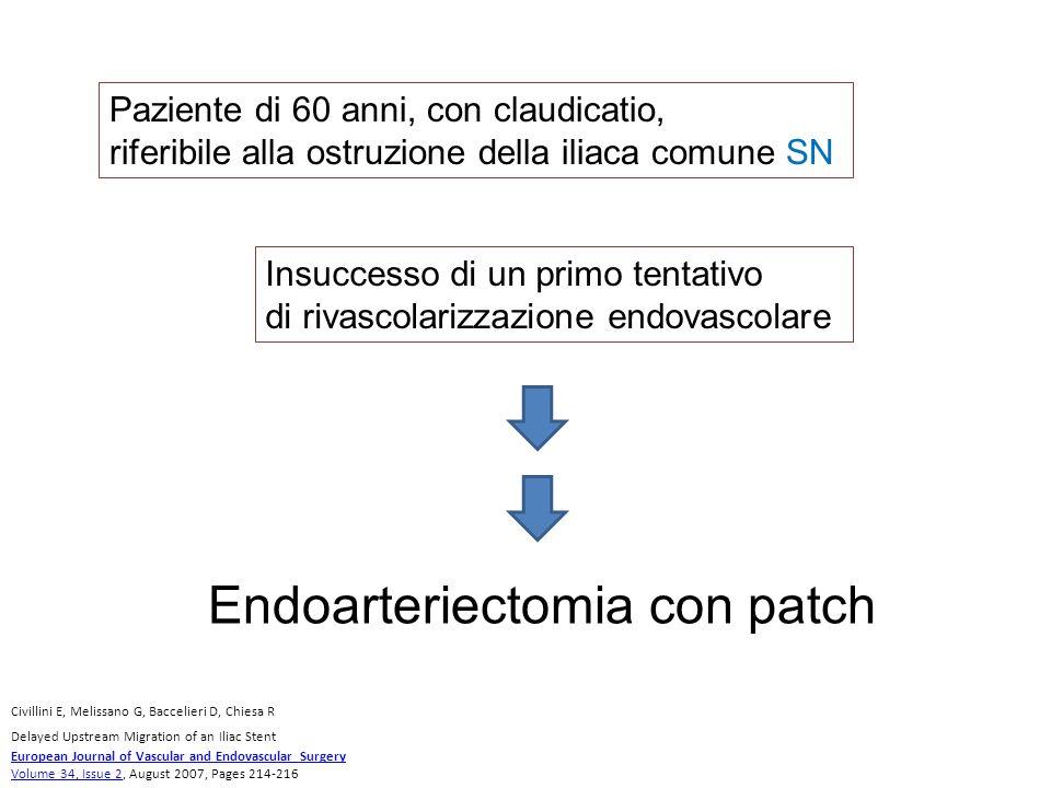 Ripristino del flusso iliaco SN, ma perdita del polso femorale omolaterale Controllo intra procedurale Viene effettuata una angiografia retrograda tramite accesso percutaneo femorale SN Flap intimale in sede distale di TEA