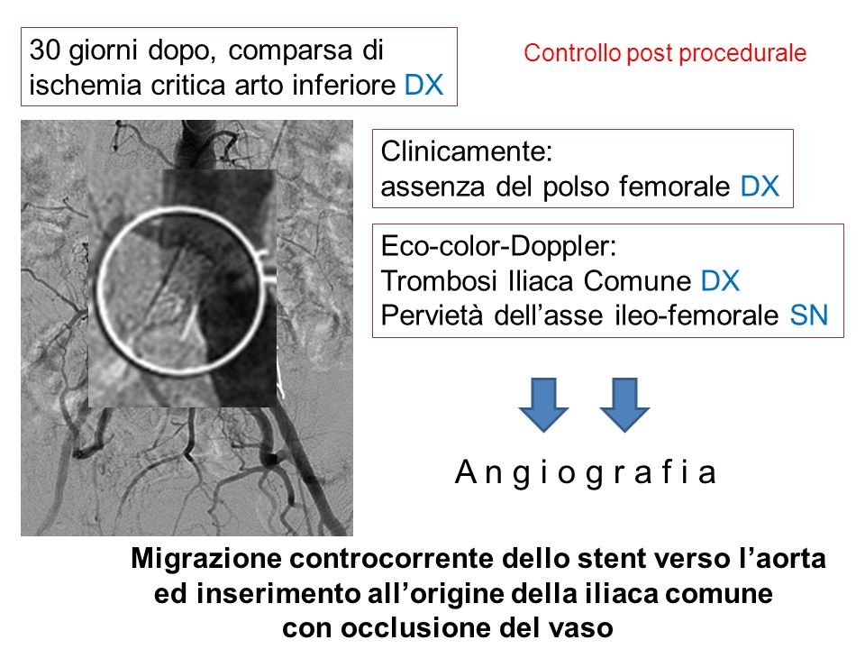 Controllo post procedurale 30 giorni dopo, comparsa di ischemia critica arto inferiore DX Clinicamente: assenza del polso femorale DX Eco-color-Dopple