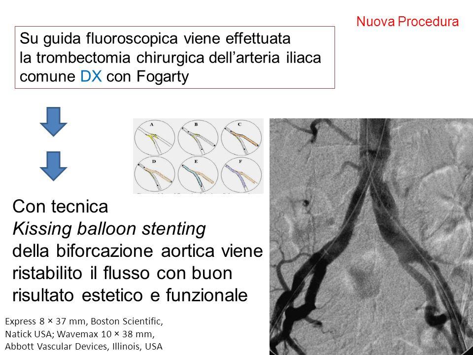 Nuova Procedura Su guida fluoroscopica viene effettuata la trombectomia chirurgica dellarteria iliaca comune DX con Fogarty Con tecnica Kissing balloo