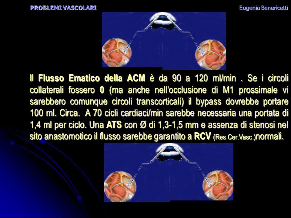 PROBLEMI VASCOLARI Eugenio Benericetti Il Flusso Ematico della ACM è da 90 a 120 ml/min. Se i circoli collaterali fossero 0 (ma anche nellocclusione d