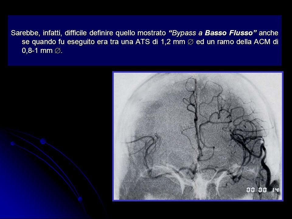 Sono mostrati due HF grafts arteriosi eseguiti sulla biforcazione di M1 e su M2 La sproporzione diametrale di (2) non sembra diminuire il territorio di perfusione.