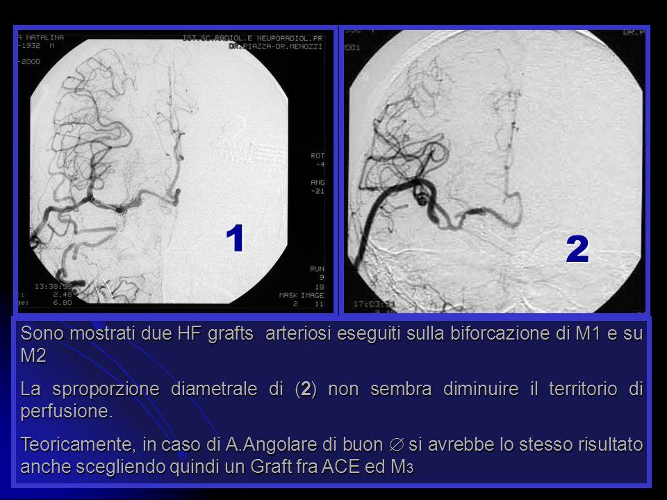 Sono mostrati due HF grafts arteriosi eseguiti sulla biforcazione di M1 e su M2 La sproporzione diametrale di (2) non sembra diminuire il territorio d