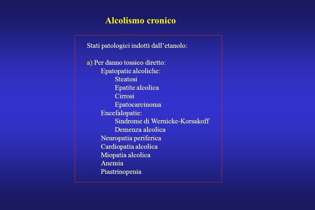 Alcolismo cronico Stati patologici indotti dalletanolo: a) Per danno tossico diretto: Epatopatie alcoliche: Steatosi Epatite alcolica Cirrosi Epatocar