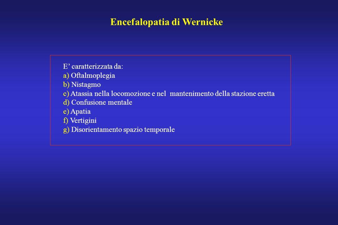 Encefalopatia di Wernicke E caratterizzata da: a) Oftalmoplegia b) Nistagmo c) Atassia nella locomozione e nel mantenimento della stazione eretta d) C