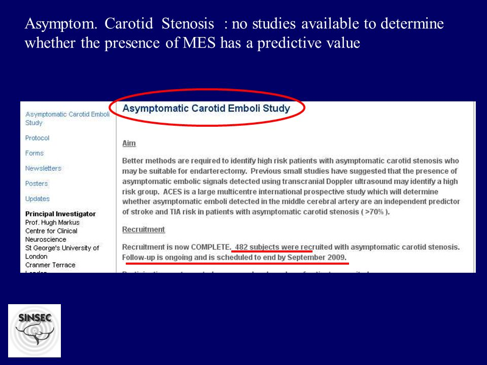 Asymptom. Carotid Stenosis : no studies available to determine whether the presence of MES has a predictive value