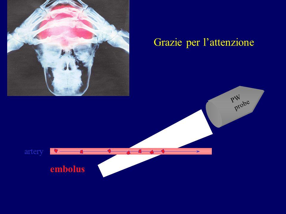 Grazie per lattenzione PW probe artery embolus