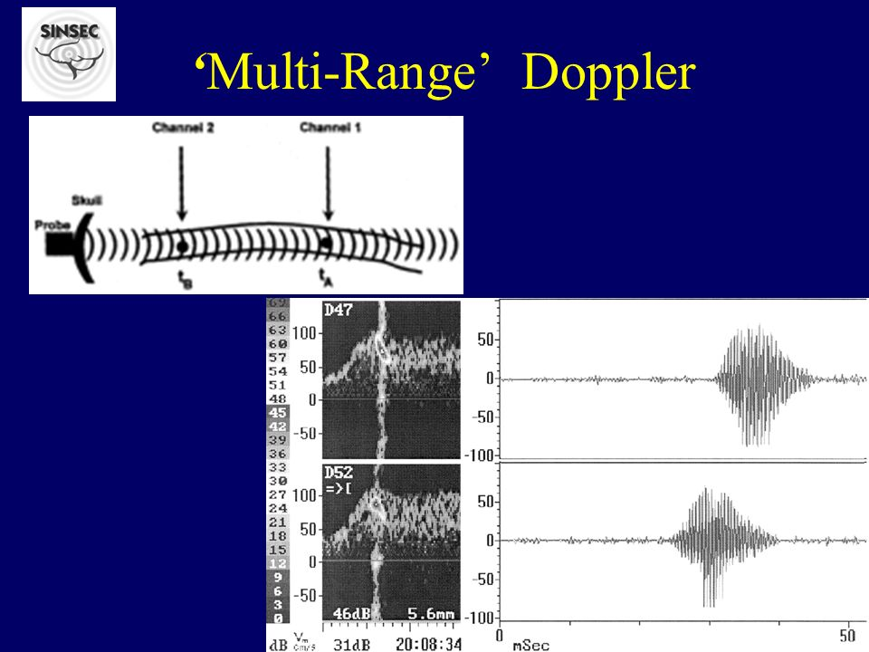 86 pts symptomatic in the last 30 (mean 7,3)days If tolerance for and applicability of 1-hour transcranial Doppler monitoring for embolic signals is limited, monitoring may be stopped after 20 to 30 minutes without loss of clinically relevant information if no more than 2 signals in 20 minutes or 3 signals in 30 minutes have been detected or if their number already exceeds 10 signals in 20 minutes or 15 signals in 30 minutes.