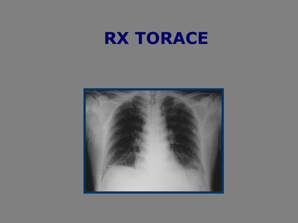 CASO CLINICO Il pz ci era giunto allosservazione ambulatoriale nellottobre del 2005 per la comparsa da circa 5gg prima dellesecuzione dellesame, di una tumefazione al polpaccio sx con dolore alla deambulazione.