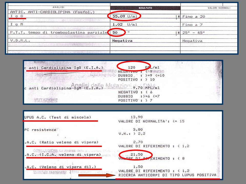 DIMENSIONI FOP E RISCHIO DI ICTUS FOP grandi (cTEE >2 mm) associati con ictus criptogenico (45% vs.
