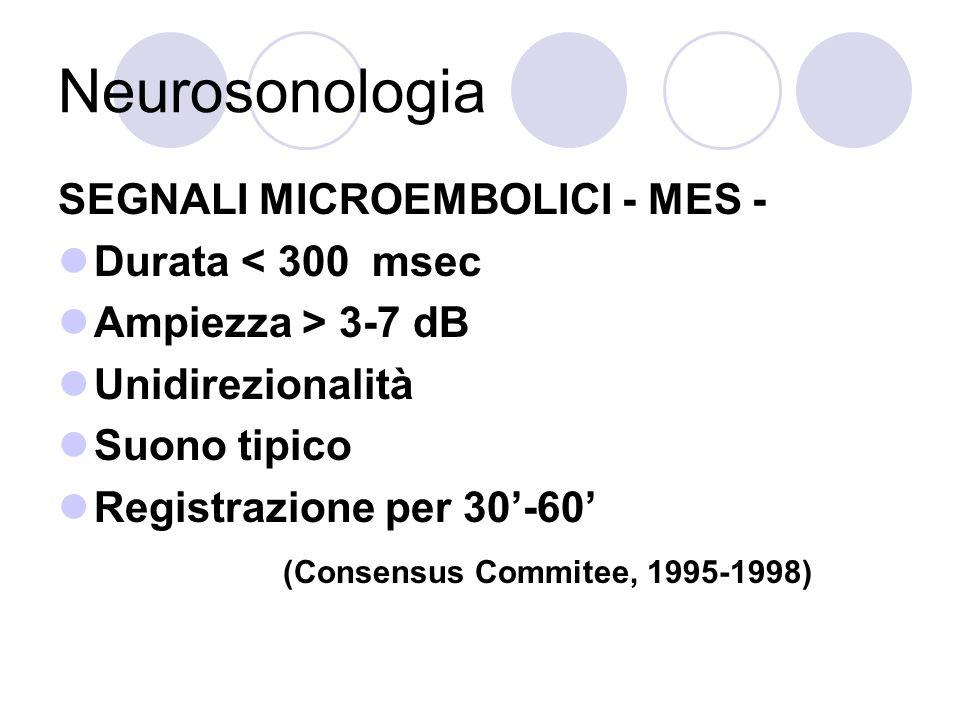 Neurosonologia SEGNALI MICROEMBOLICI - MES - Durata < 300 msec Ampiezza > 3-7 dB Unidirezionalità Suono tipico Registrazione per 30-60 (Consensus Comm