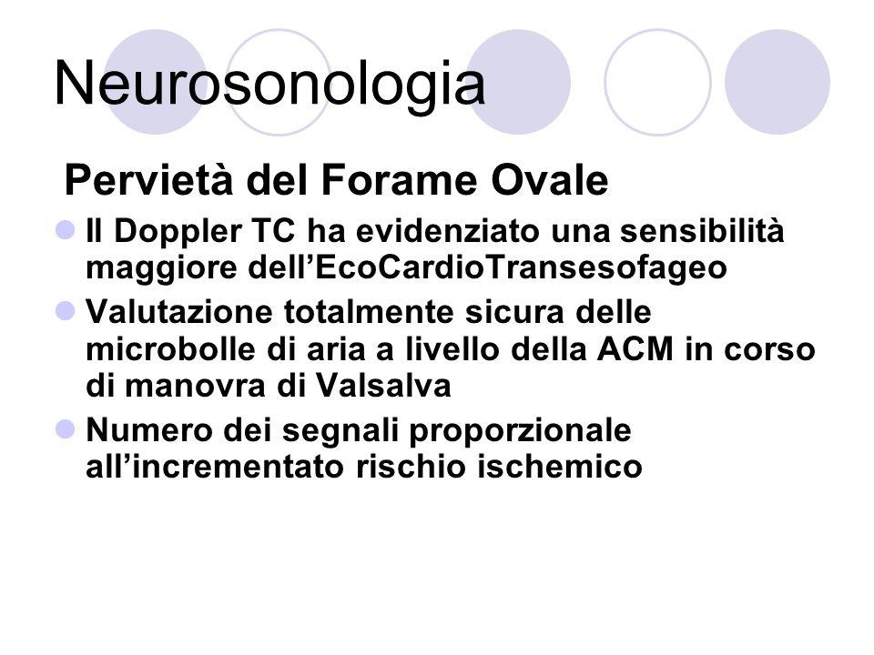 Neurosonologia Pervietà del Forame Ovale Il Doppler TC ha evidenziato una sensibilità maggiore dellEcoCardioTransesofageo Valutazione totalmente sicur