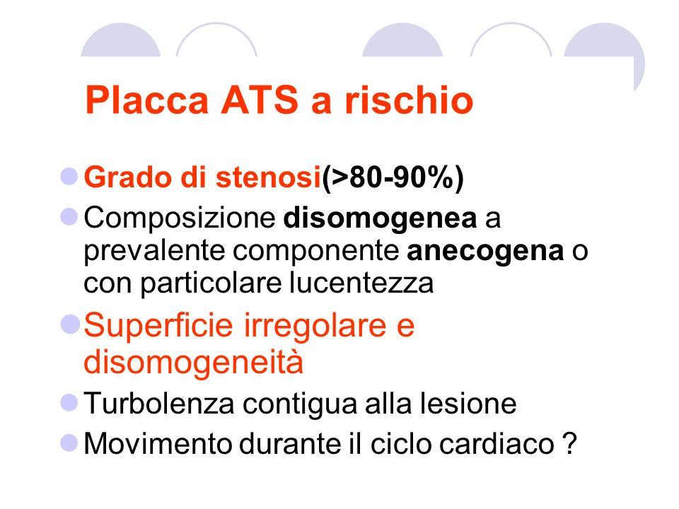Placca ATS a rischio Grado di stenosi(>80-90%) Composizione disomogenea a prevalente componente anecogena o con particolare lucentezza Superficie irre