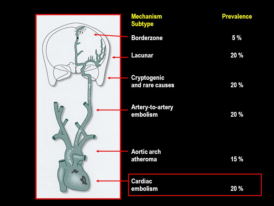 MechanismPrevalence Subtype Borderzone5 % Lacunar20 % Cryptogenic and rare causes20 % Artery-to-artery embolism20 % Aortic arch atheroma15 % Cardiac e