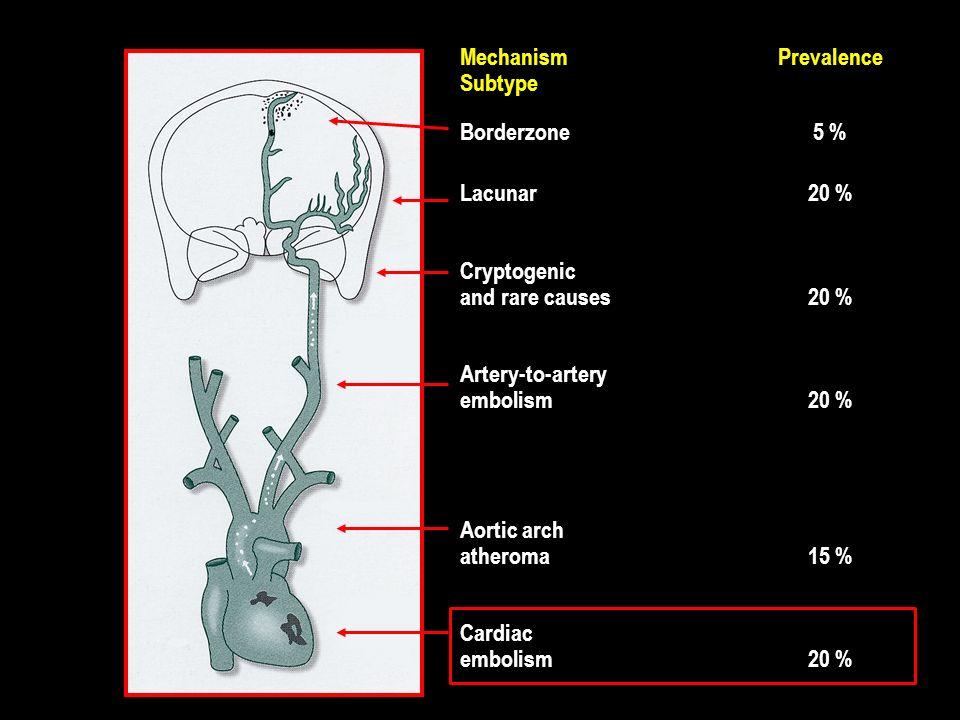 Stroke cardioembolico Diagnosi Evidenza di fonte cardioembolica (+ assenza di lesioni aterosclerotiche significative) Neuroimaging Biomarkers (BNP, DD) Caratteristiche cliniche