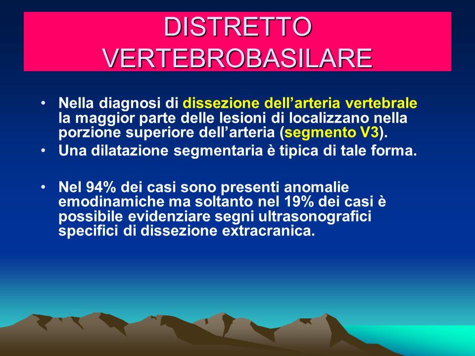 DISTRETTO VERTEBROBASILARE Nella diagnosi di dissezione dellarteria vertebrale la maggior parte delle lesioni di localizzano nella porzione superiore