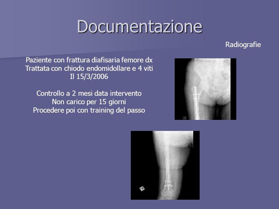 Documentazione Radiografie Paziente con frattura diafisaria femore dx Trattata con chiodo endomidollare e 4 viti Il 15/3/2006 Controllo a 2 mesi data