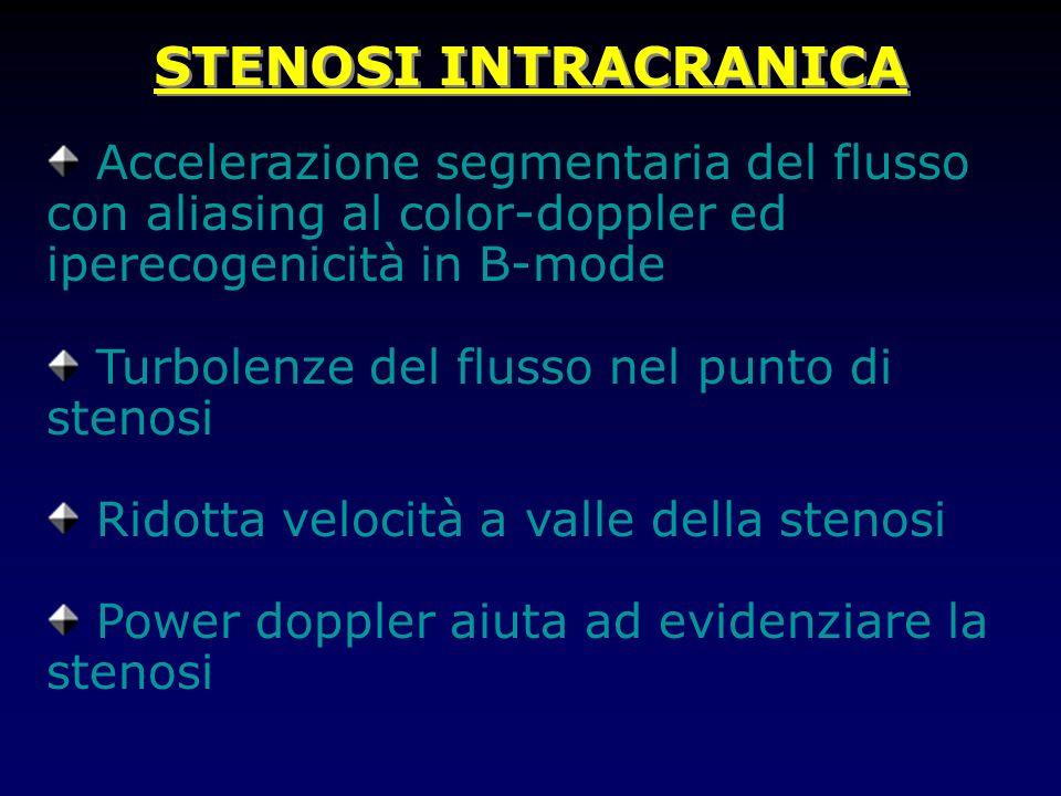 STENOSI INTRACRANICA Accelerazione segmentaria del flusso con aliasing al color-doppler ed iperecogenicità in B-mode Turbolenze del flusso nel punto di stenosi Ridotta velocità a valle della stenosi Power doppler aiuta ad evidenziare la stenosi