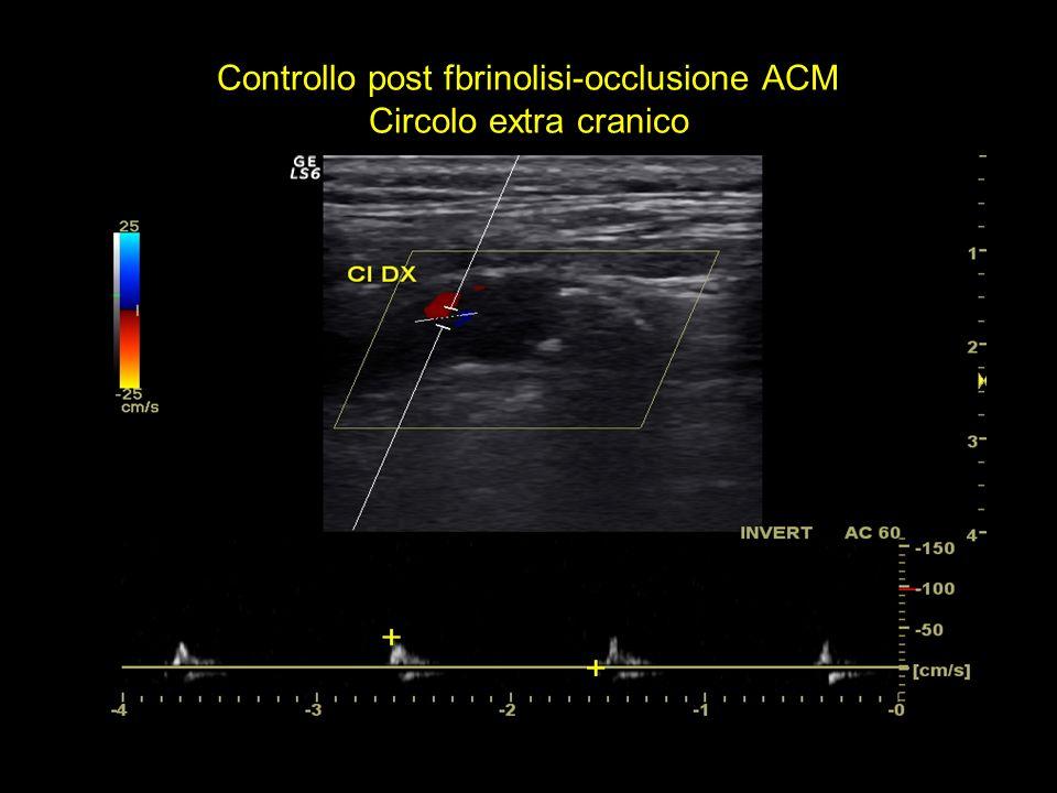 Controllo post fbrinolisi-occlusione ACM Circolo extra cranico