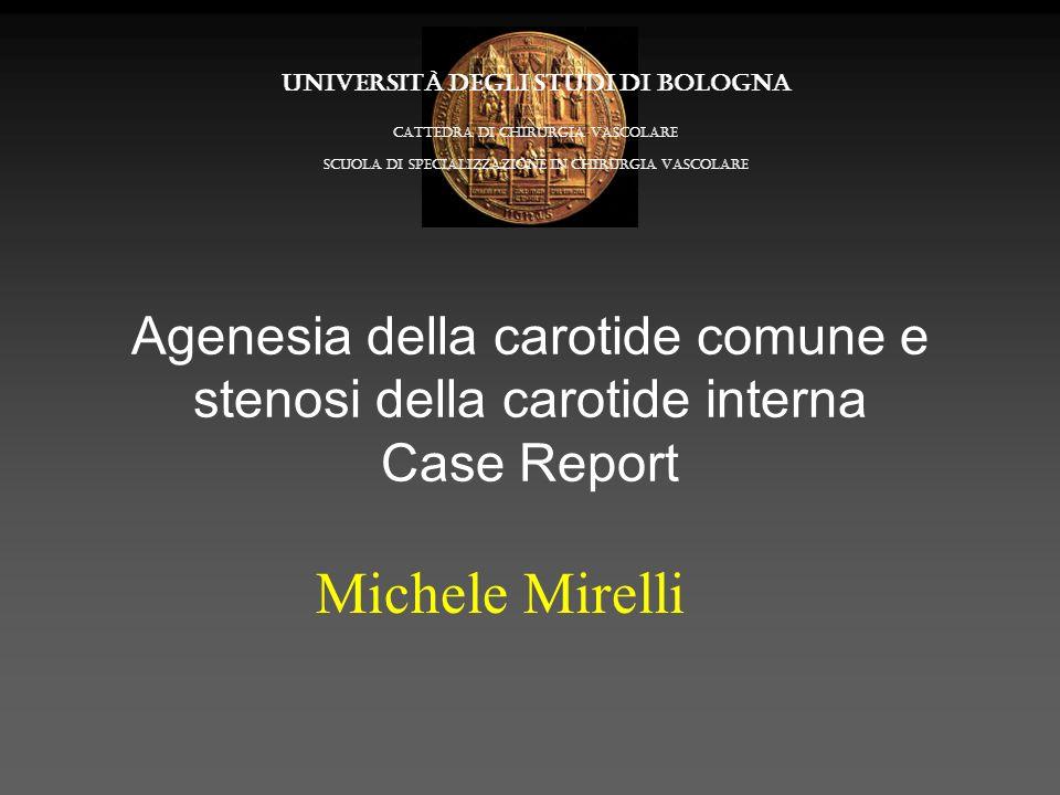 Agenesia della carotide comune e stenosi della carotide interna Case Report Michele Mirelli Università degli Studi di Bologna Cattedra di Chirurgia va