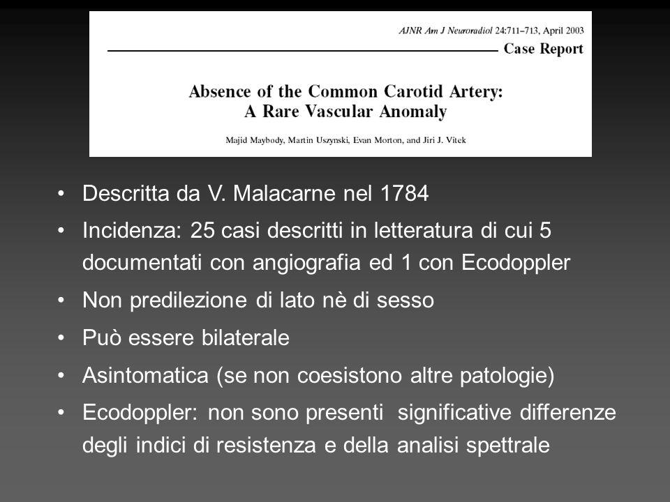 Descritta da V. Malacarne nel 1784 Incidenza: 25 casi descritti in letteratura di cui 5 documentati con angiografia ed 1 con Ecodoppler Non predilezio