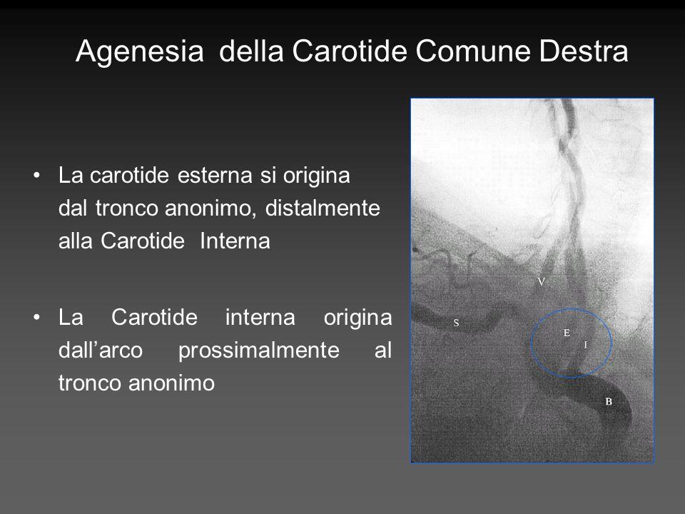 Agenesia della Carotide Comune Destra La carotide esterna si origina dal tronco anonimo, distalmente alla Carotide Interna La Carotide interna origina
