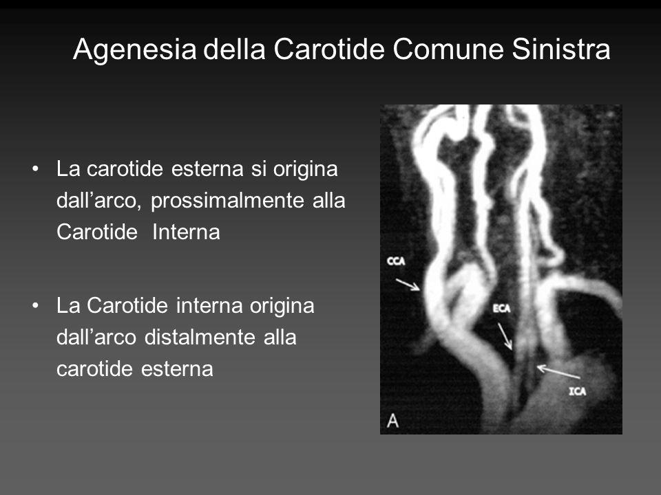 Agenesia della Carotide Comune Sinistra La carotide esterna si origina dallarco, prossimalmente alla Carotide Interna La Carotide interna origina dall