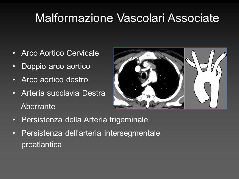 Malformazione Vascolari Associate Arco Aortico Cervicale Doppio arco aortico Arco aortico destro Arteria succlavia Destra Aberrante Persistenza della