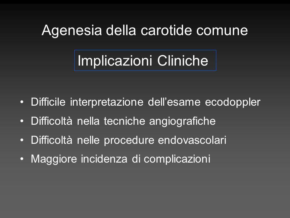 Agenesia della carotide comune Difficile interpretazione dellesame ecodoppler Difficoltà nella tecniche angiografiche Difficoltà nelle procedure endov