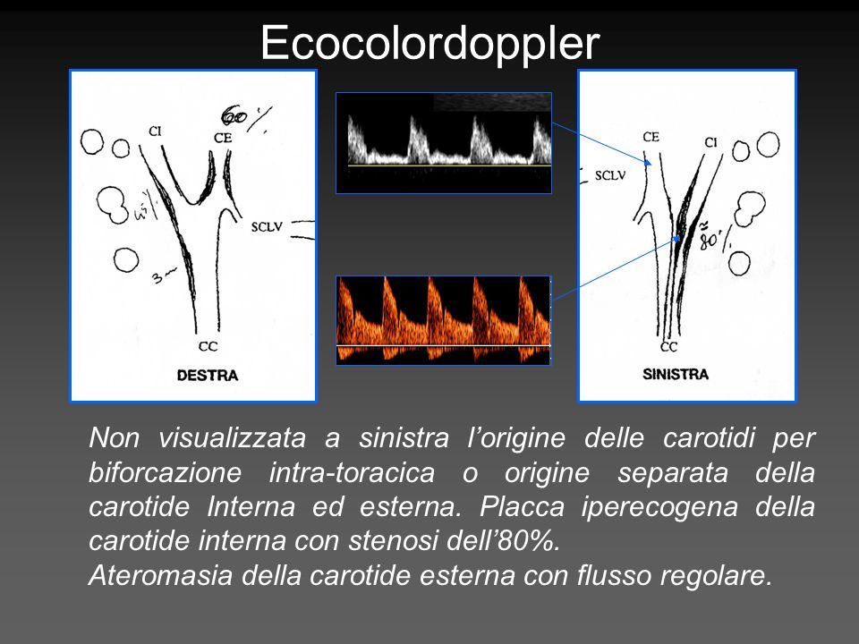 Non visualizzata a sinistra lorigine delle carotidi per biforcazione intra-toracica o origine separata della carotide Interna ed esterna. Placca ipere