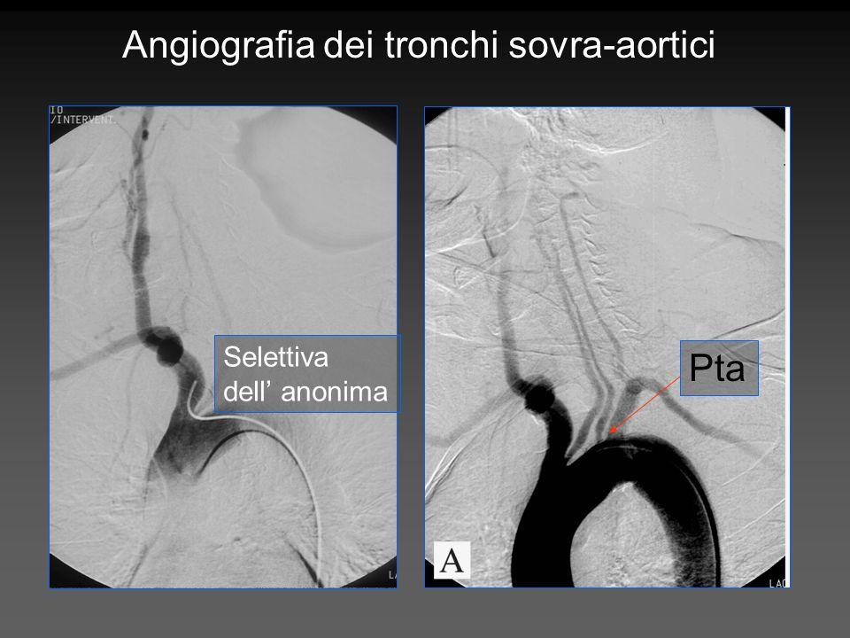 Angiografia dei tronchi sovra-aortici Pta Selettiva dell anonima